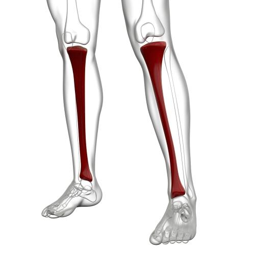 Medial Tibial Stress Syndrome, Shin Splints